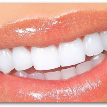 How to keep teeth white and clean always