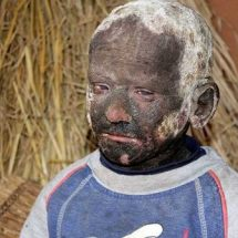 Ramesh Kumari 'slowly turning into stone' suffers from devastating skin condition that freezes his body