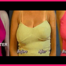 Causes and prevention of saggy breasts
